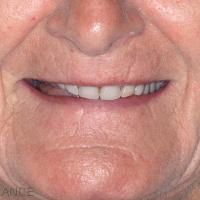 Fig. 2 : Examen du sourire avec les anciennes prothèses.
