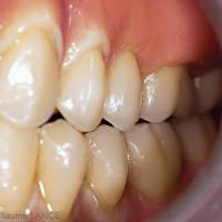 Fig. 4 : Lors des mouvements de latéralité, l'ensemble des cuspides des pré- molaires et molaires sont en contact.