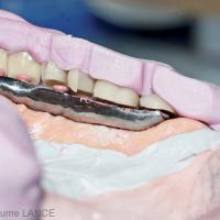 Fig. 8 : La prothèse de type pilotis impose une hauteur prothétique importante. Il est intéressant de pouvoir utiliser des dents de hauteur réduite.