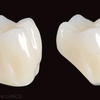 Fig. 9 : Molaires standard et réduite de la gamme Genios®.