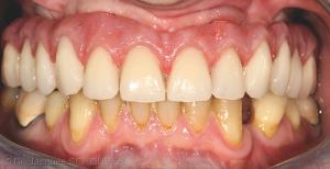 Fig. 1 : Intégration esthétique, biologique et fonctionnelle d'une restauration sur barre transvissée de type All-on-4® réalisée au maxillaire.