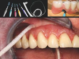 Fig. 2 : Un design de la prothèse adapté favorise l'accès aux instruments d'hygiène, déterminants essentiels de la pérennité implanto-prothétique..