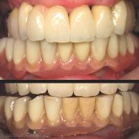 Fig. 7 : Avec le temps, les dents en résine présentent des signes d'abrasion et d'absorption de colorants, ici sur la prothèse mandibulaire le jour de la pose (en haut) et à 5 ans (en bas).