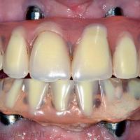 Fig. 8 : Usure des dents prothétiques et de la résine qui les englobe, inadaptation muqueuse due à la résorption ostéo-muqueuse après 6 ans de service.
