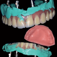 Fig. 9 : Empreintes de situation des muqueuses sous les prothèses à l'aide de silicone et cire d'enregistrement des rapports intermaxillaires et d'une nouvelle dimension verticale.