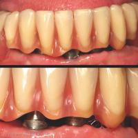Fig. 4 : Une résorption ostéo-muqueuse post prothétique conduit à un déficit d'adaptation de la prothèse après 6 années de service.