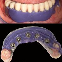 Fig. 5 : Un polyéther injecté directement sous la prothèse permet d'enregistrer la nouvelle situation de la muqueuse en vue d'une réfection complète de la base en résine de la prothèse.