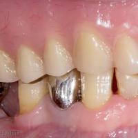 Fig. 1 A à E : Cas clinique d'une PAC maxillaire face à une arcade mandibulaire dentée. Le patient se plaint d'une prothèse instable provoquant un inconfort à la mastication. La prothèse s'est fracturée et a été réparée à plusieurs reprises. On note une absence de prise en charge de l'arcade mandibulaire. Des égressions, versions et usures des dents mandibulaires ne permettent pas d'obtenir une occlusion «balancée» correcte.