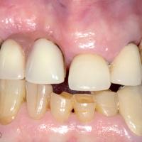 Fig. 1b : situation initiale : Avec prothèse amovible partielle d'usage