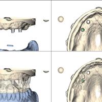 Fig. 8 : Numérisation des modèles et des coiffes télescopiques avec (en bas) et sans (en haut) les projets prothétiques. A ce stade, il faut vérifier que le grand axe des coiffes télescopiques soit perpendiculaire au plan d'occlusion (documents : DentsplyTM Implants).