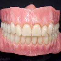 Fig. 10d : Maquillage et finitions des prothèses amovibles complètes polychromiques.