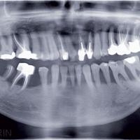 Fig. 1b : Situation initiale du cas clinique : Vue panoramique.