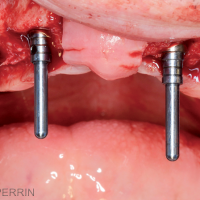 Fig. 4a : Chirurgie maxillaire. Mise en place de quatre implants.