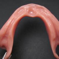 Fig. 13b : ... d'une prothèse amovible complète aux larges volets rétro- mylo-hyoïdiens essentiels à sa stabilisation.