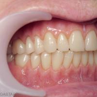 Fig. 22a : Vues buccales – on note la qualité de l'occlusion (1/2 dents) – l'aménagement d'un diastème interincisif maxillaire et l'inclusion (à la demande de la patiente) d'une couronne métallique en lieu et place de la 24 dans un souci de naturel accentué par la polychromie de la gencive prothétique.