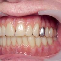 Fig. 22b : Vues buccales – on note la qualité de l'occlusion (1/2 dents) – l'aménagement d'un diastème interincisif maxillaire et l'inclusion (à la demande de la patiente) d'une couronne métallique en lieu et place de la 24 dans un souci de naturel accentué par la polychromie de la gencive prothétique.