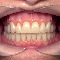 PAC maxillo mandibulaire polychromiques