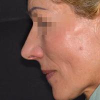 Vue de profil permettant d'apprécier le soutien des lèvres et la Dimension Verticale d'Occlusion