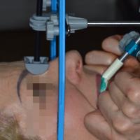 Enregistrement d'un arc facial pour le positionnement du modèle maxillaire