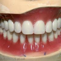 12. Montage des dents prothétiques sur articulateur avec respect des paramètres esthétiques et fonctionnels de la prothèse complète.