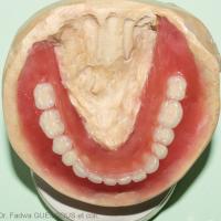 13. Vue occlusale du montage de dents prothétiques mandibulaires.