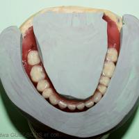 15. Montage des dents prothétiques mandibulaires qui respecte le couloir prothétique enregistré.