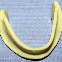 4. PEI avec lame de Brill: des surfaces concaves au niveau des extrados vestibulaires.