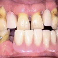 1d. Vue de face avec les appareils provisoires du patient en bouche qui vont être utilisés pour mise en condition tissulaire.