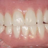 6. Mise en bouche des prothèses d'usage. a. Vue de face des prothèses complètes en OIM.