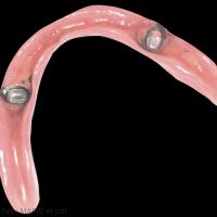 6b. Intrados de la prothèse amovible complète mandibulaire comportant dans son intrados les parties femelles des conus.