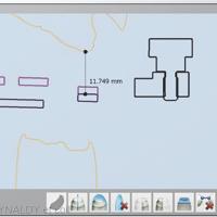 11. Positionnement vertical du plan d'occlusion à partir de la valeur du papillomètre.