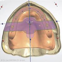 12b. Modélisation des PEI. Maquette d'occlusion avec encoches pour le gnathomètre CAD.