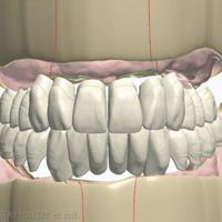 11. Planification du montage des dents et modélisation des fausses gencives. a. Modélisation de la position des dents, poistion des lignes de crêtes.
