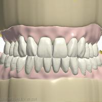 11e. Finalisation de la planification, proposition pour validation auprès du chirurgien-dentiste.