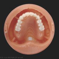 3c. Collage de l'arc dentaire usiné.