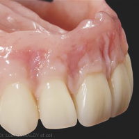 4. Maquillage des fausses gencives. Composites Nexco Gingiva, Ivoclar-Vivadent®) (Jean-Yves Ciers).