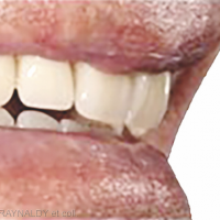 1a. Mise en bouche des prothèses.