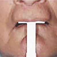 6. Longueur de la lèvre au repos.