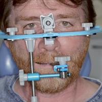 4. Arc facial de transfert (modèle FAG).