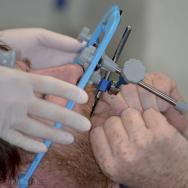 9b. Transfert par arc facial à l'étape d'équilibration des prothèses.