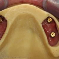 4. Essayage du PEI en bouche. Noter l'espacement autour des implants.