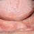 2. Vue endobuccale mandibulaire : crête plate avec une situation haute du plancher buccal.