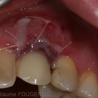 vue vestibulaire à 8 jours post-opératoire