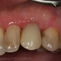 à 2 mois après l'intervention : intégration parfaite de la couronne provisoire et stabilisation des tissus mous