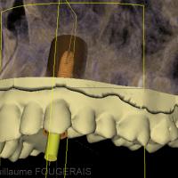 vue de profil en 3D de la planification implantaire
