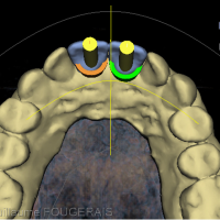 Vue palatine du projet prothétique objectivant le point d'émergence des implants au centre des faces palatines des deux dents à remplacer