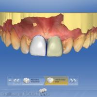 Vue vestibulaire du projet prothétique numérique (11 et 21) dans le logiciel CEREC