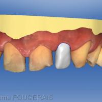 projet prothétique proposé par le logiciel CEREC en concordance avec la demande du patient (rotation de la dent et diastème mésial).