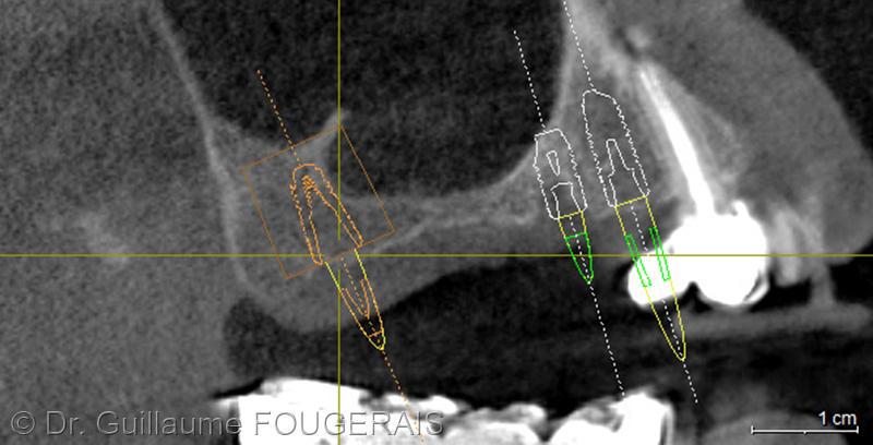 coupe panoramique permettant de visualiser les volumes osseux disponibles et le placement des implants