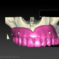 Image 3D de la prothèse sur le maxillaire